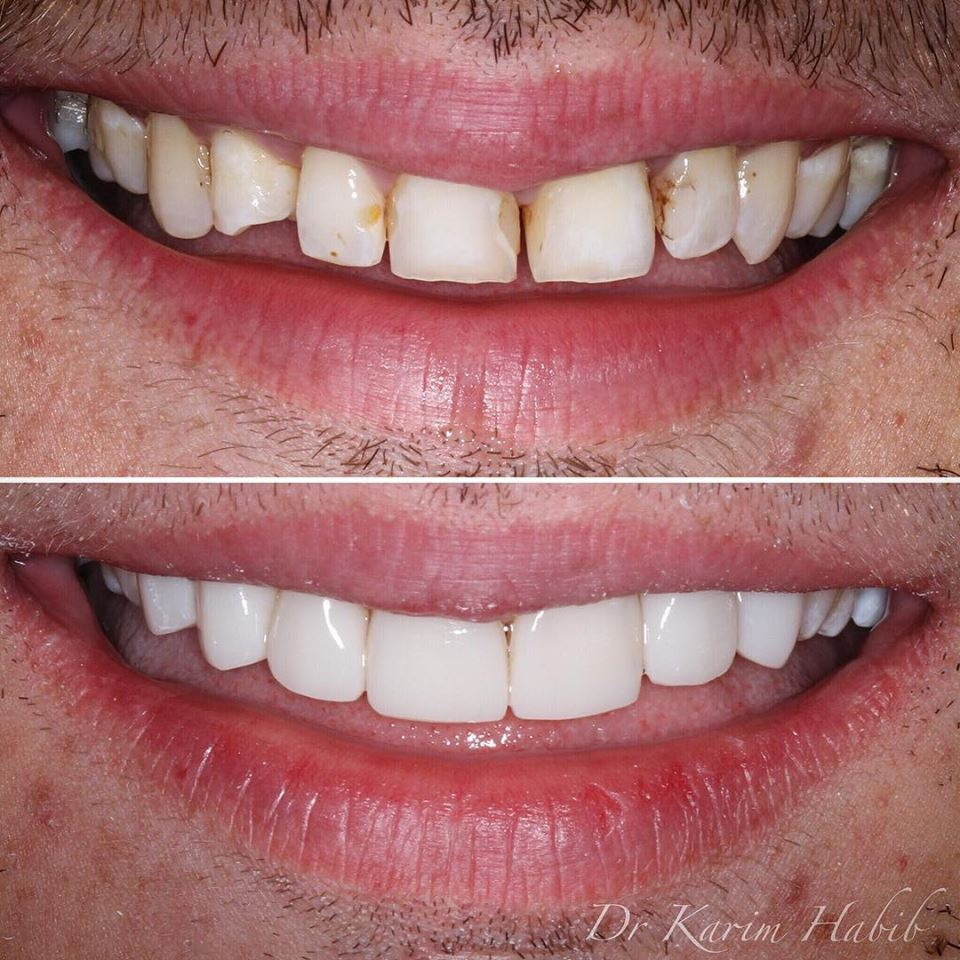 Smile makeover veneers