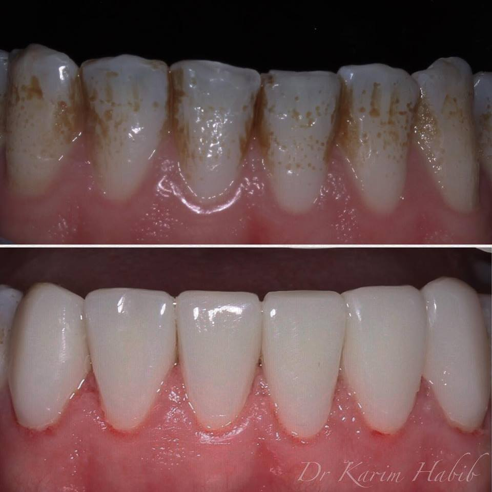 Composite veneers on lower teeth