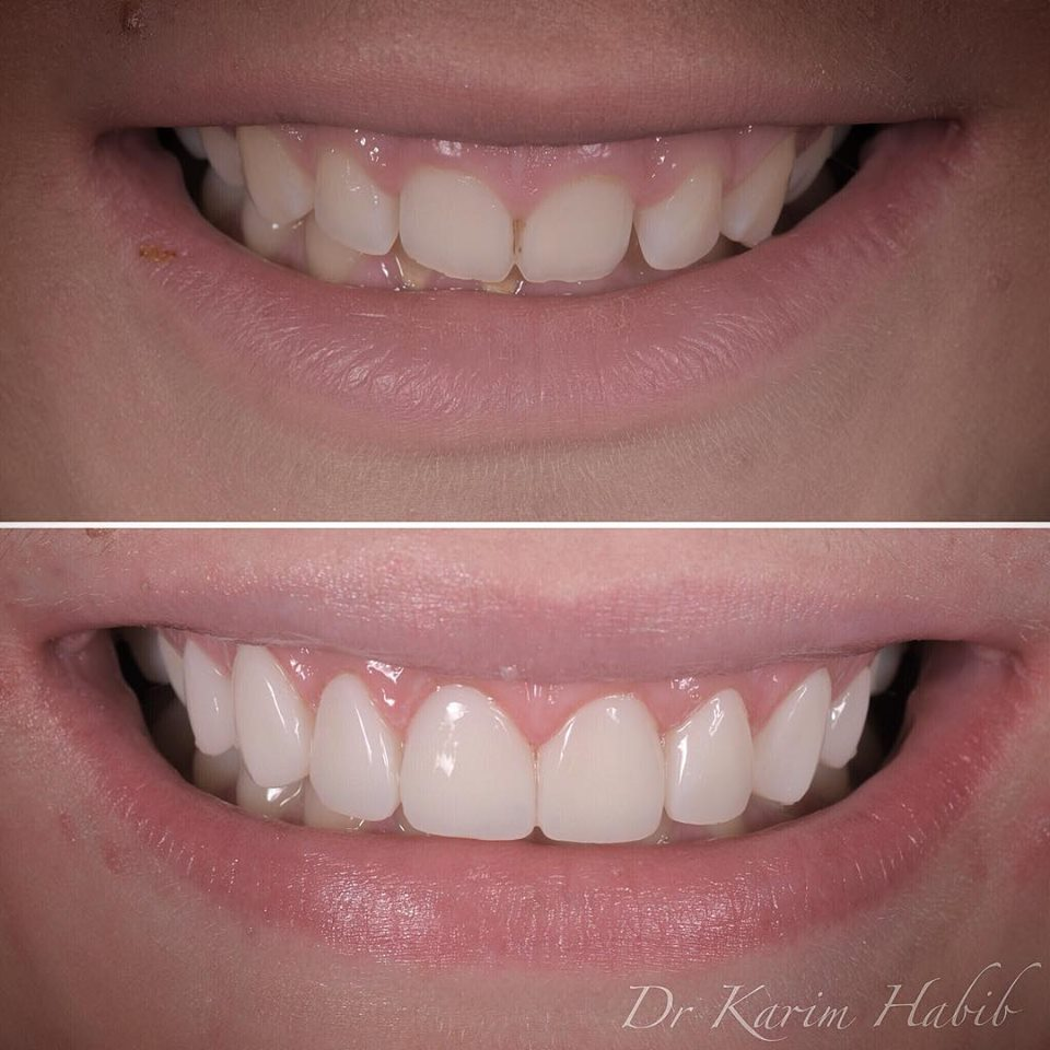 Affordable cosmetic dentistry in Sydney Australia