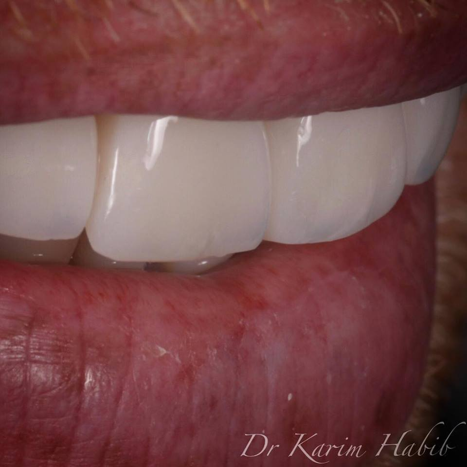 Natural translucency effects direct composite veneers in Sydney