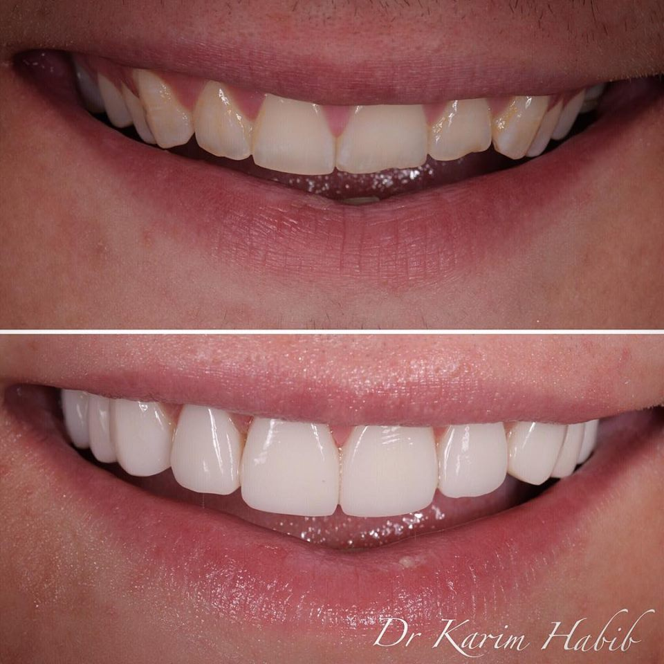 Hand-layered composite veneers by Sydney cosmetic dentist Dr K.Habib