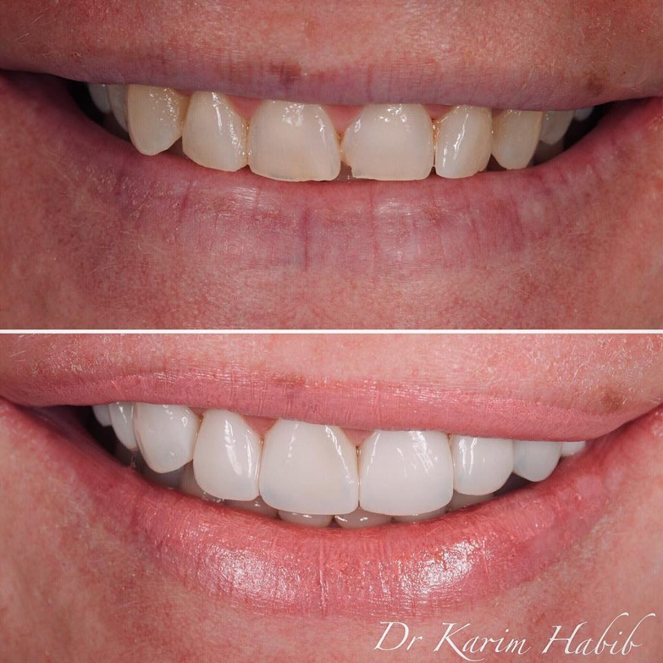 Natural hand-layered composite veneers in Sydney