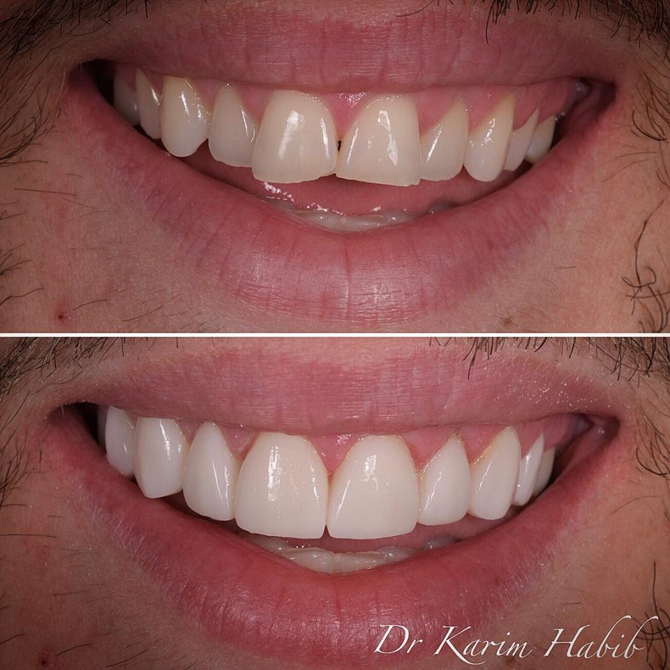 Veneers without braces