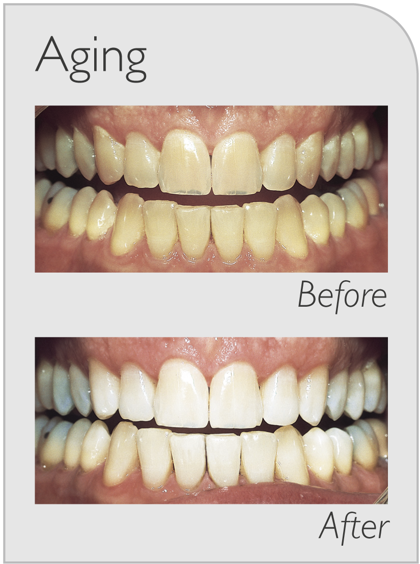dental teeth whitening in ryde
