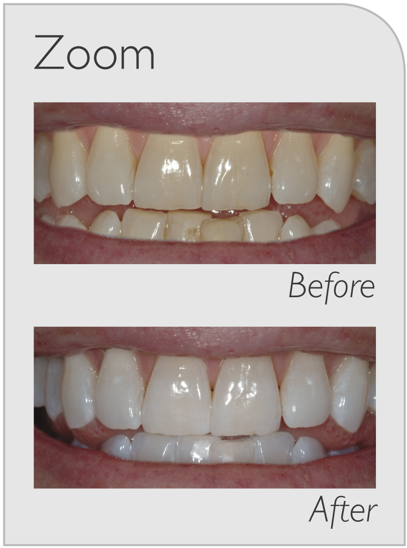 teeth whitening ryde
