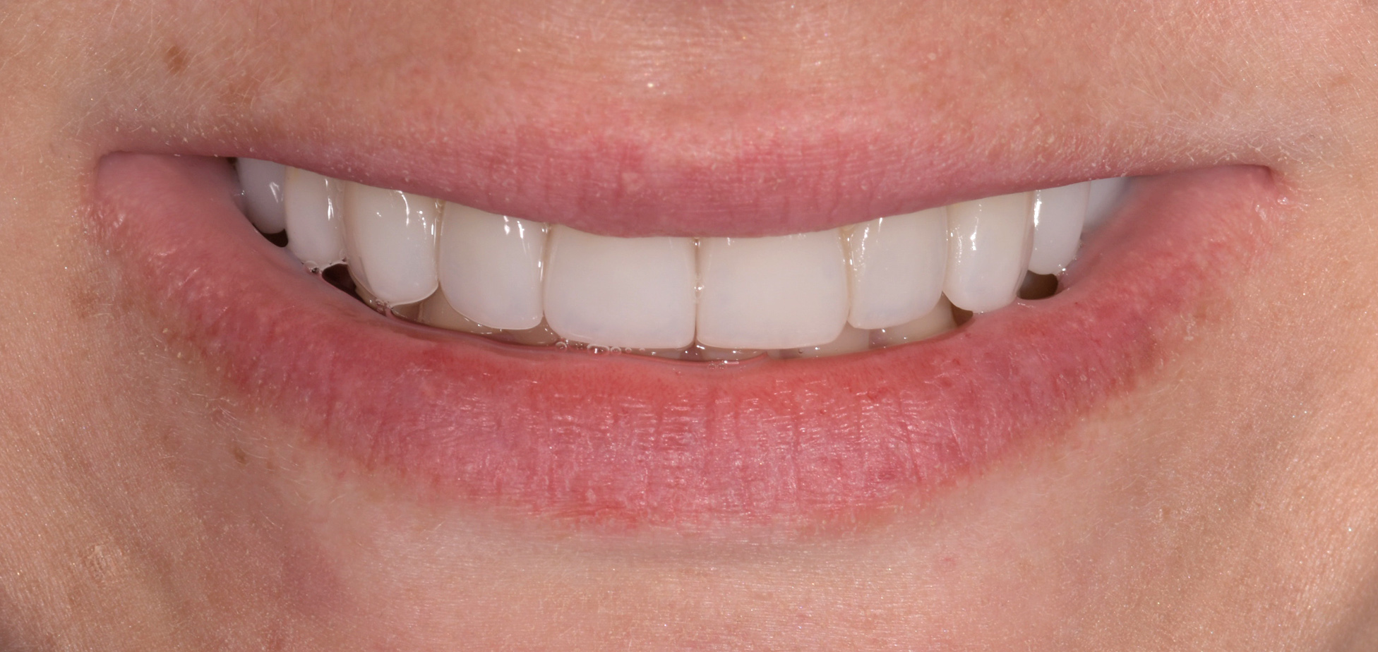 Porcelain Veneers by Cosmetic Dentist Sydney