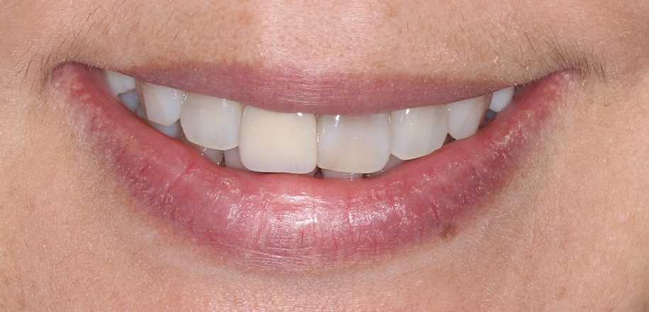 Before Cosmetic Dentistry Sydney