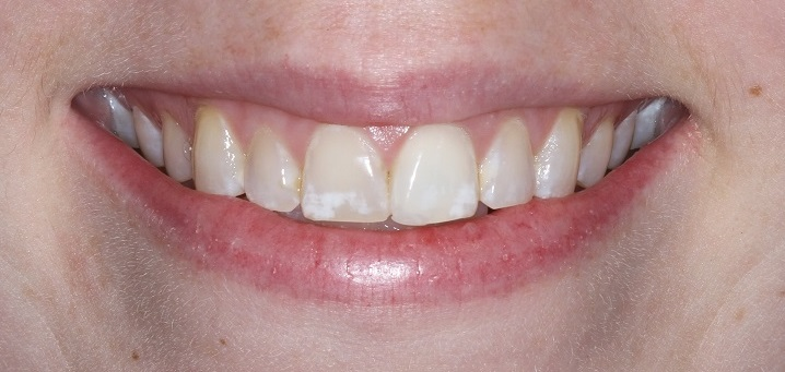 Teeth can be repaired cosmetically with Porcelain Veneers