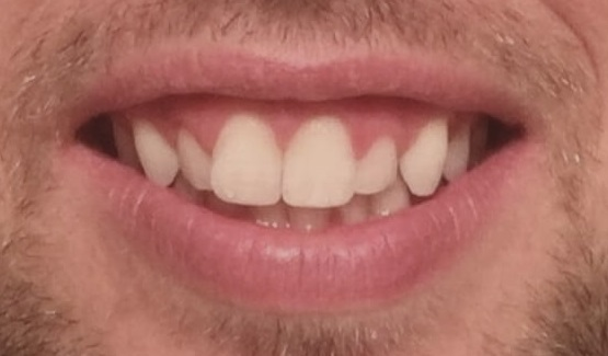 Before Gummy smile treatment and porcelain veneers