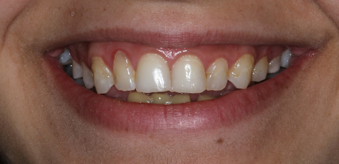 Upper and lower stained, crooked teeth, gummy smile porcelain veneers treatment