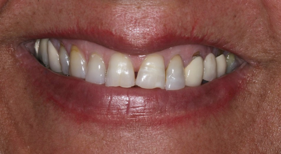 Chipped broken teeth treatment with porcelain veneers sydney
