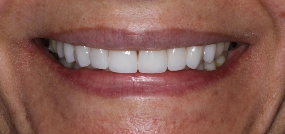 Porcelain Veneers Sydney affordable cost