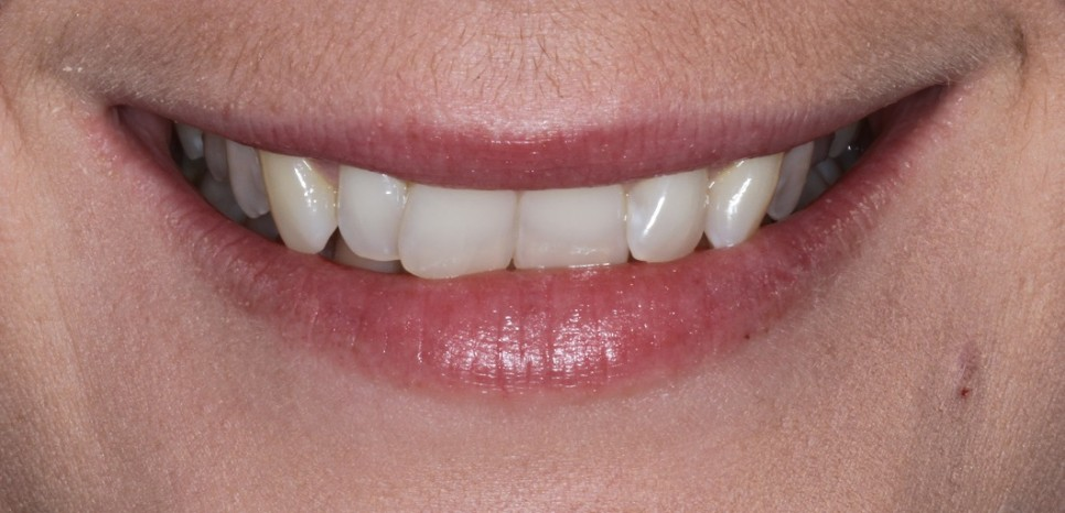 Veneers for crooked teeth