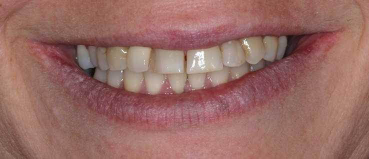 Before Dental Veneers Sydney