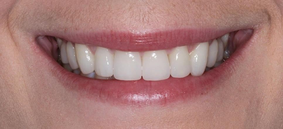 Dental Veneers broad smile