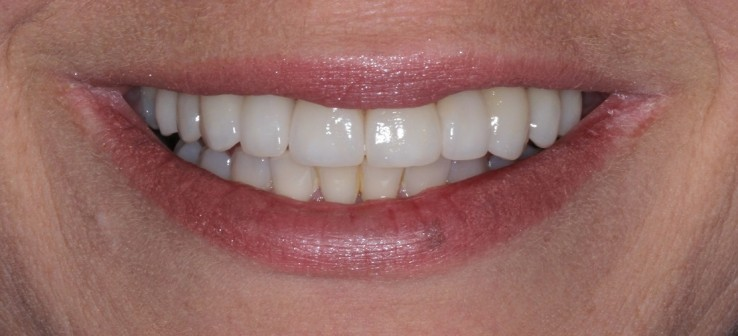 Teeth Veneers Sydney
