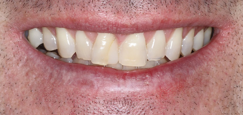 Porcelain Veneers with a Natural look