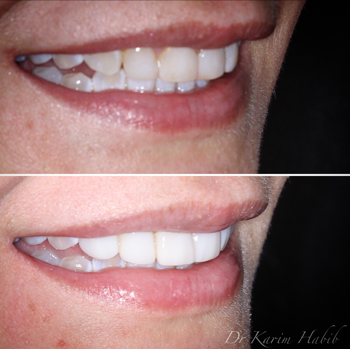 Composite resin veneers profile before and after
