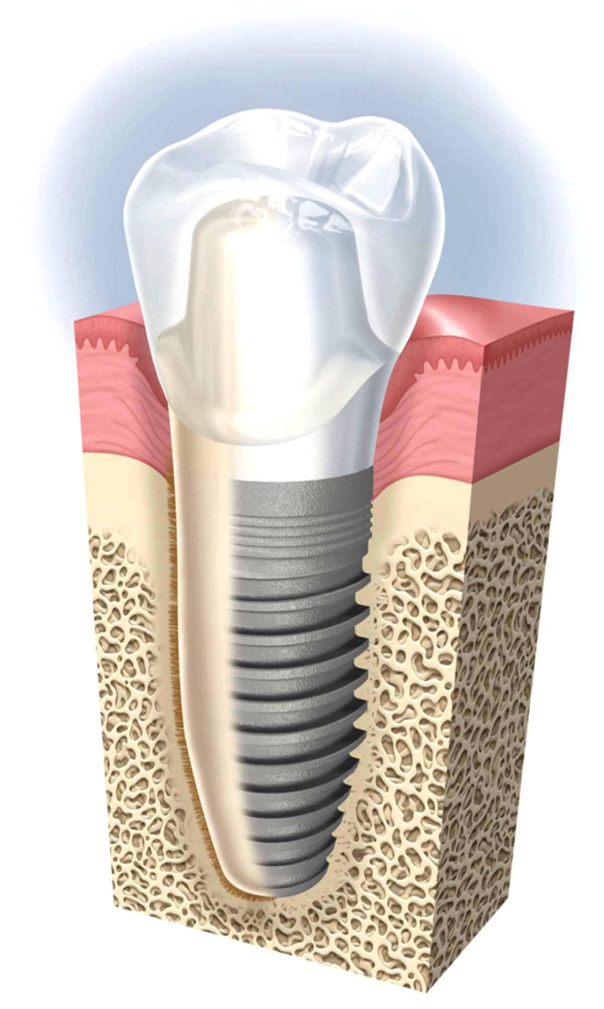 dental implants ryde cost