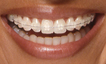clear tooth coloured braces orthodontist