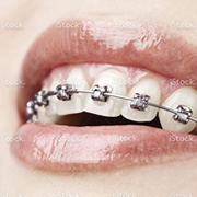 Orthodontist Ryde braces