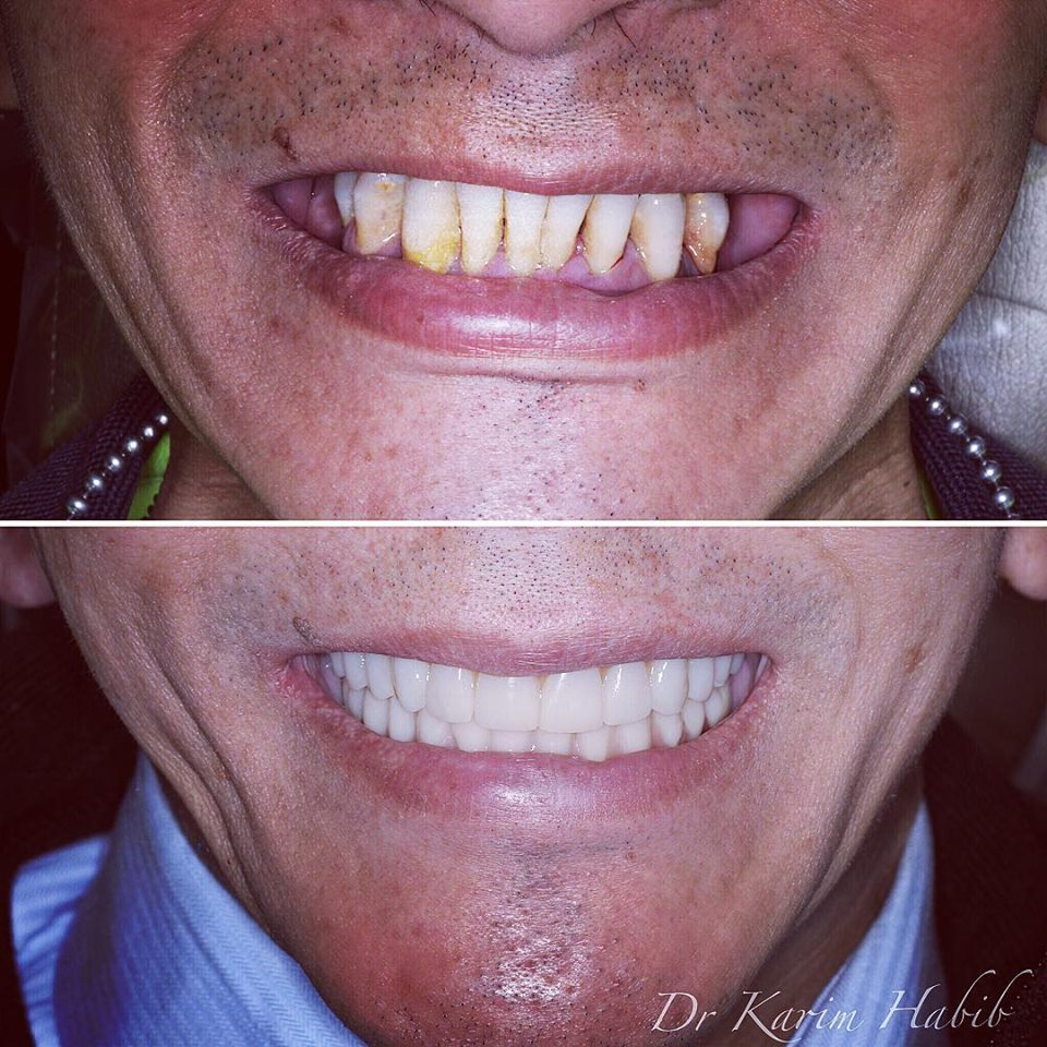 Best All on 4 Dental Implants Sydney
