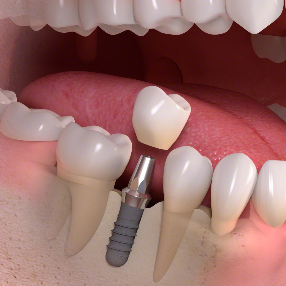 single tooth implant ryde