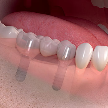 Implant for gap