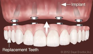 implant-supported-dentures-300x175