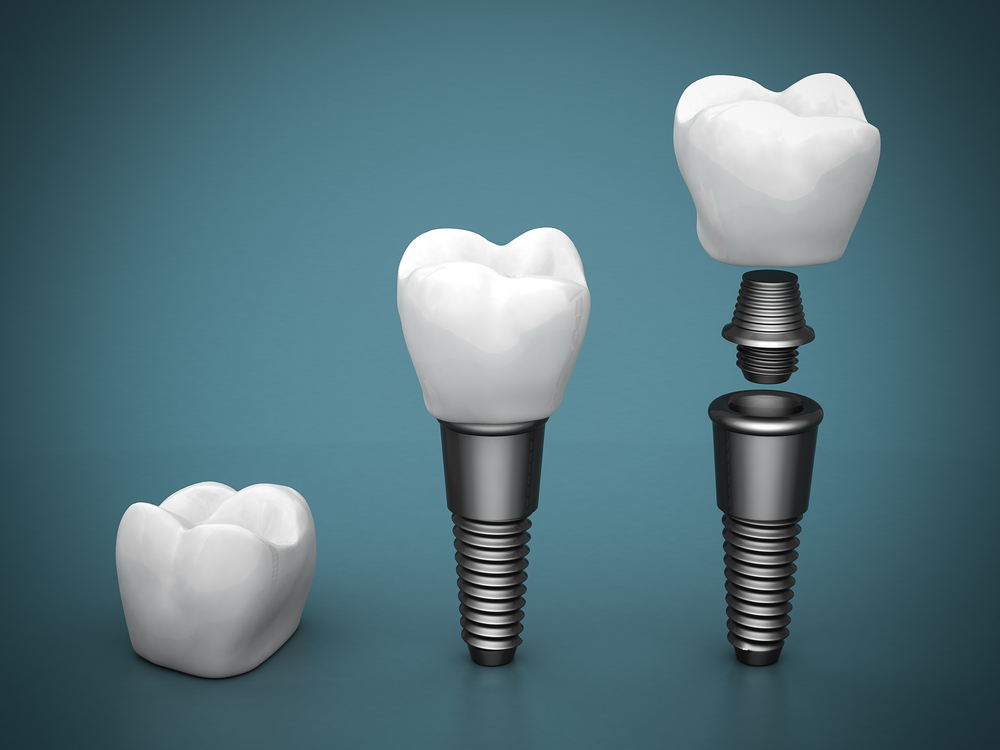 The components of a dental implant