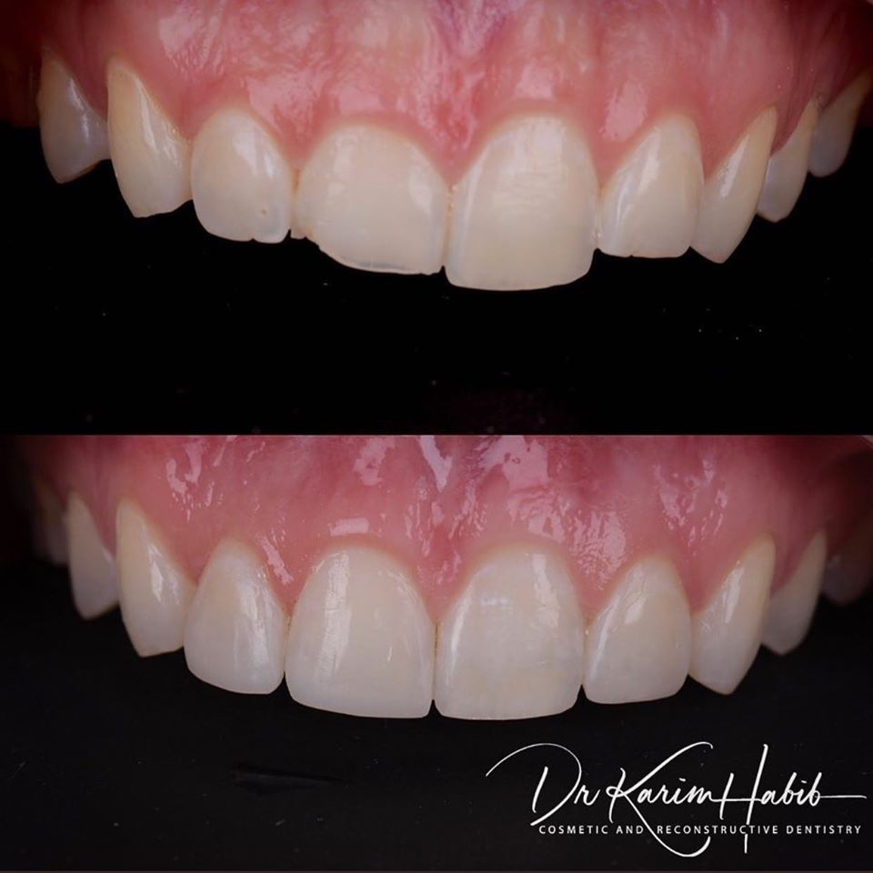 Dental Bonding Sydney