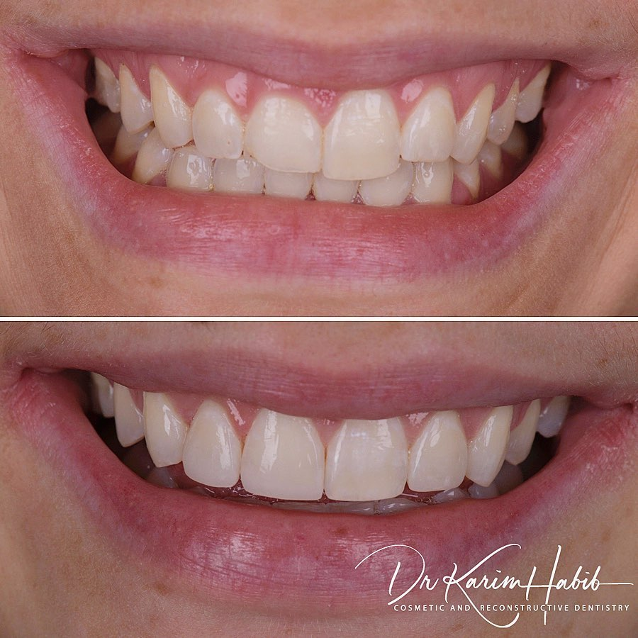 Invisalign  lite and gum treatment and bonding