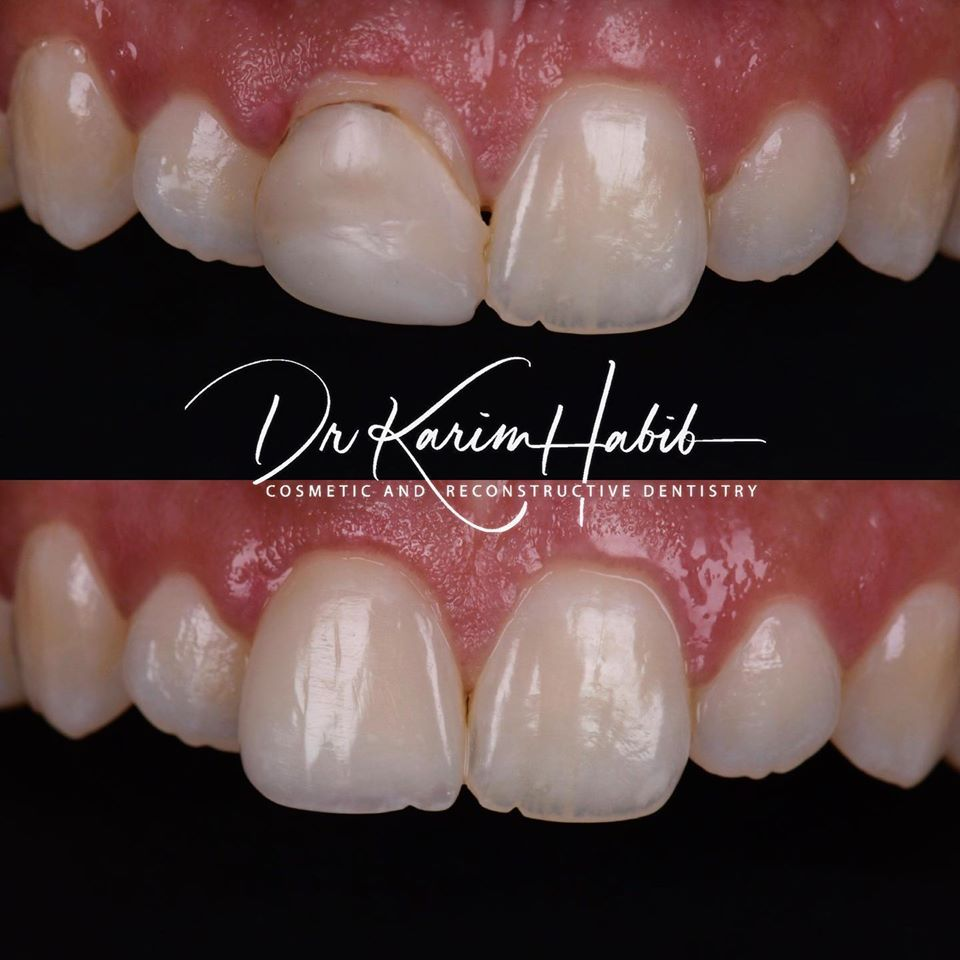 Single Tooth composite