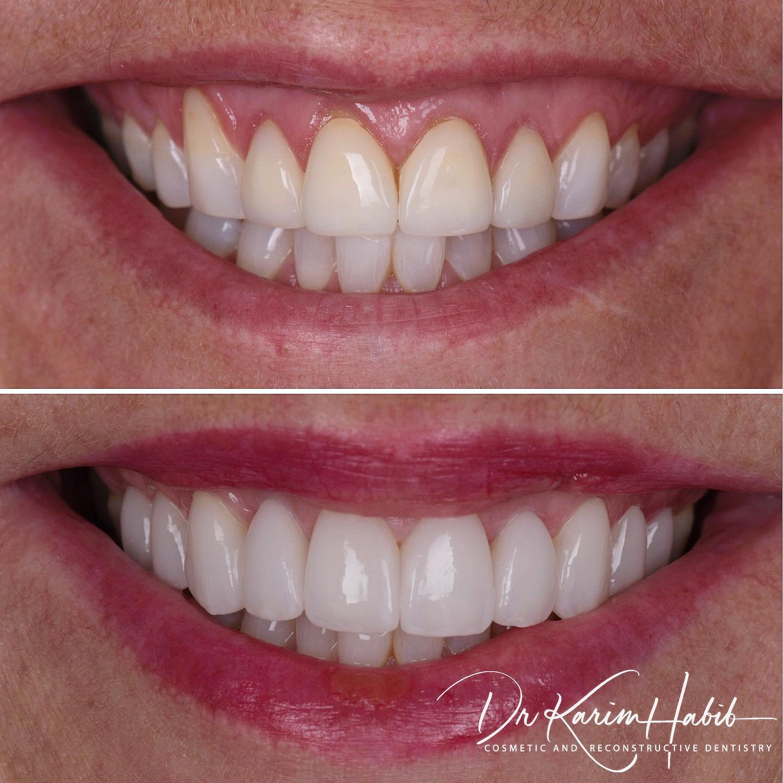 Sydney Cosmetic Dentist