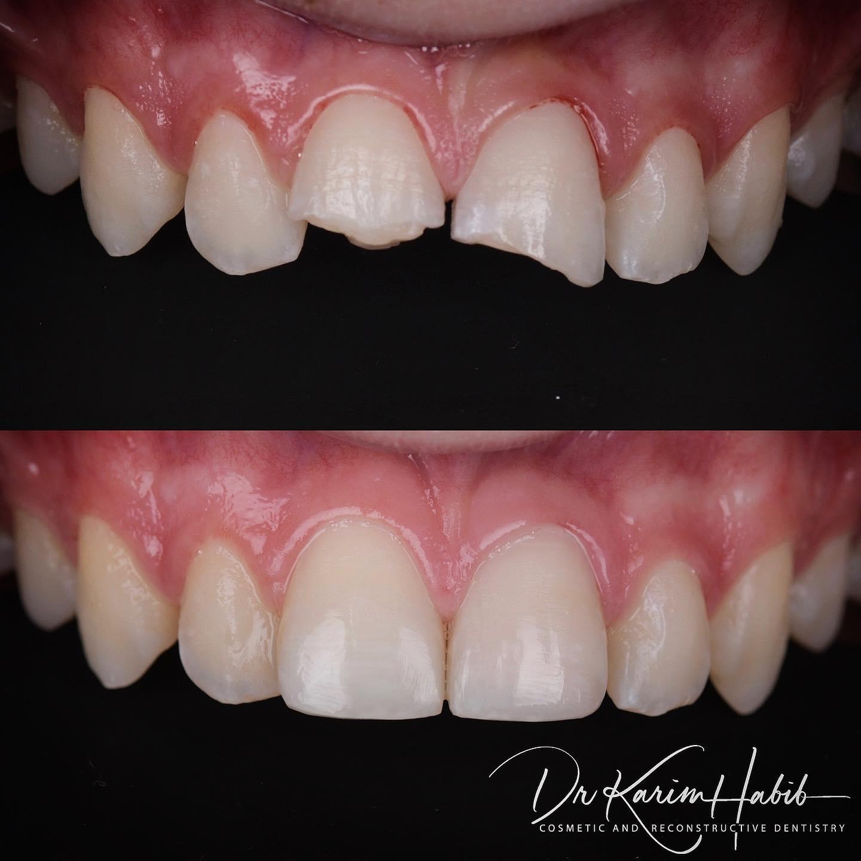 Broken teeth repaired with Composite Bonding