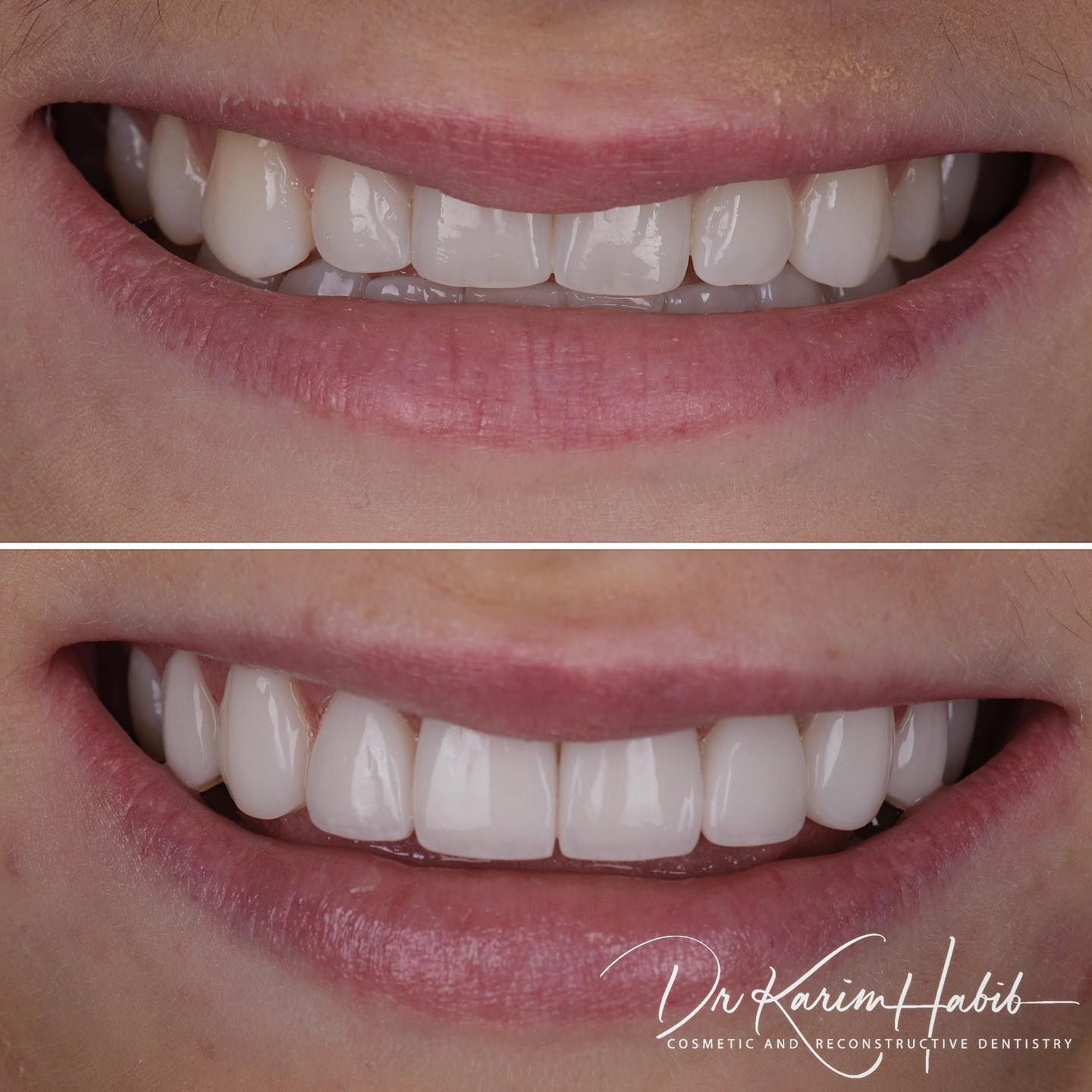 Reverse Smile Curve Correction with Veneers