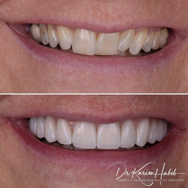 Invislaign dentist sydney