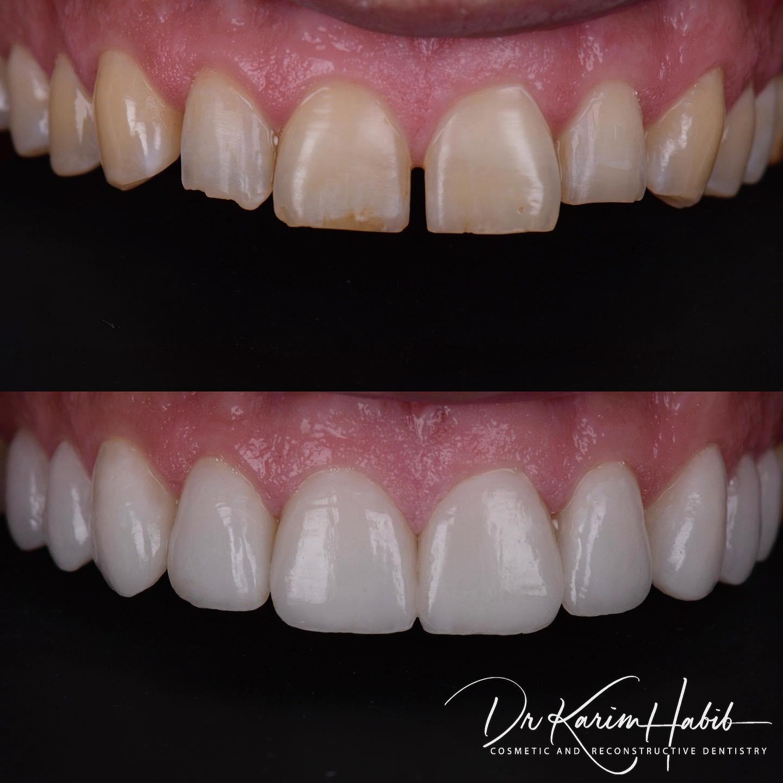 Porcelain Veneers Cosmetic Dentistry Sydney
