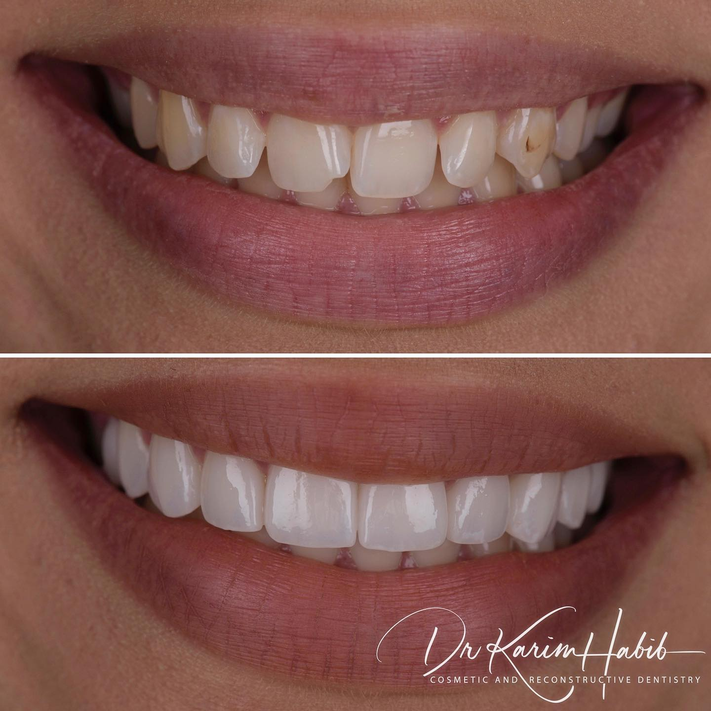 Glamourous and Beautiful veneers Sydney