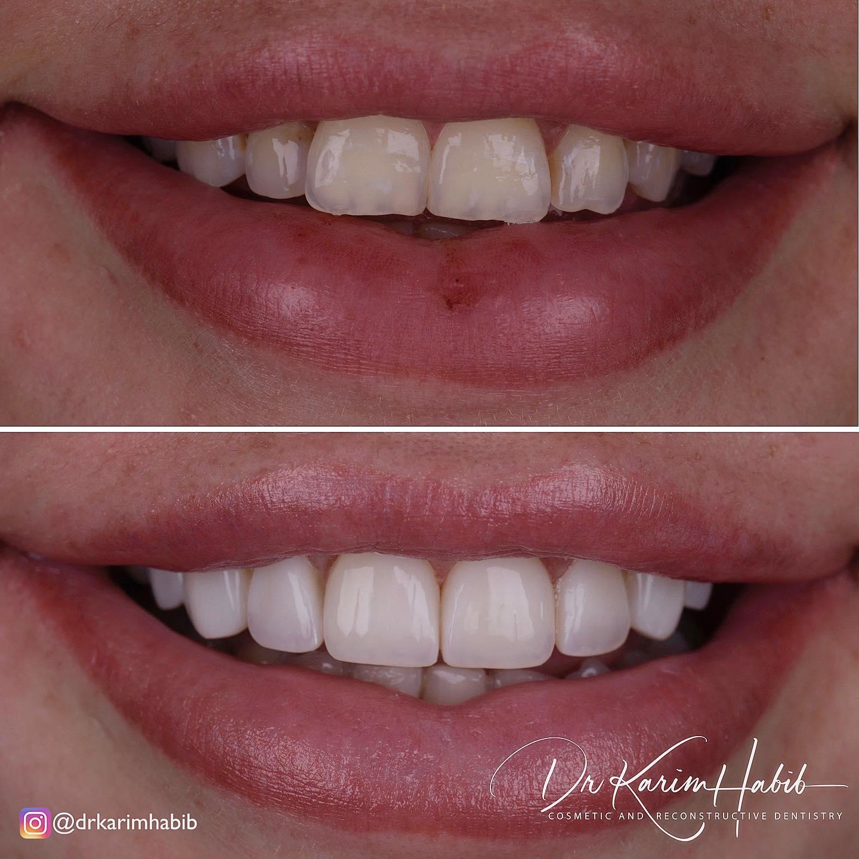Smile Dentist Sydney