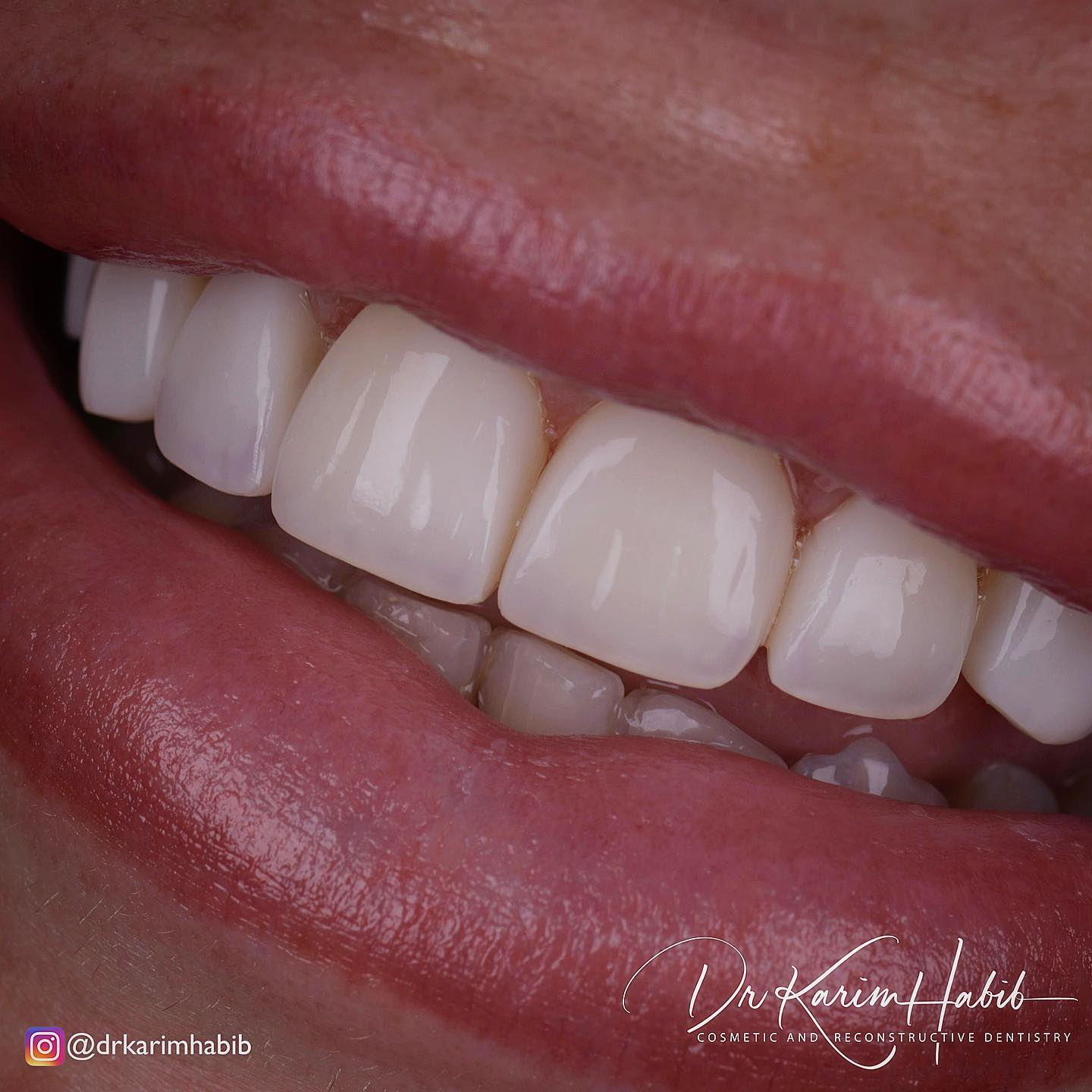 Composite and Porcelain Veneers