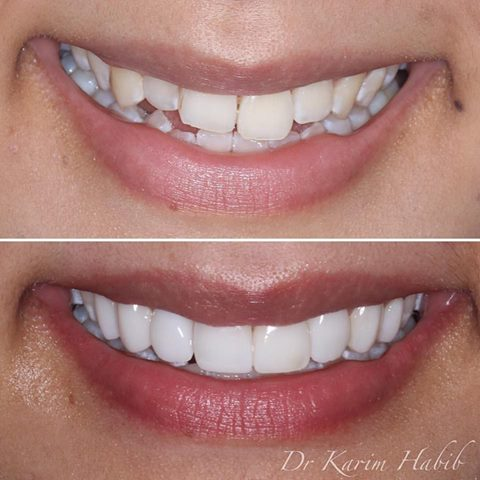 Best Composite veneers sydney