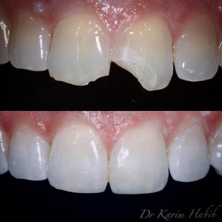 Composite Bonding Chipped tooth repair