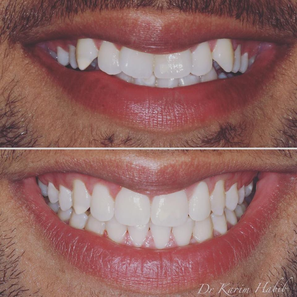 Invisalign smile straight teeth