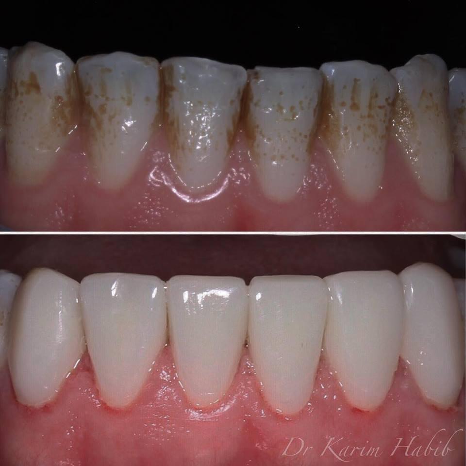 Composite veneers on lower teeth