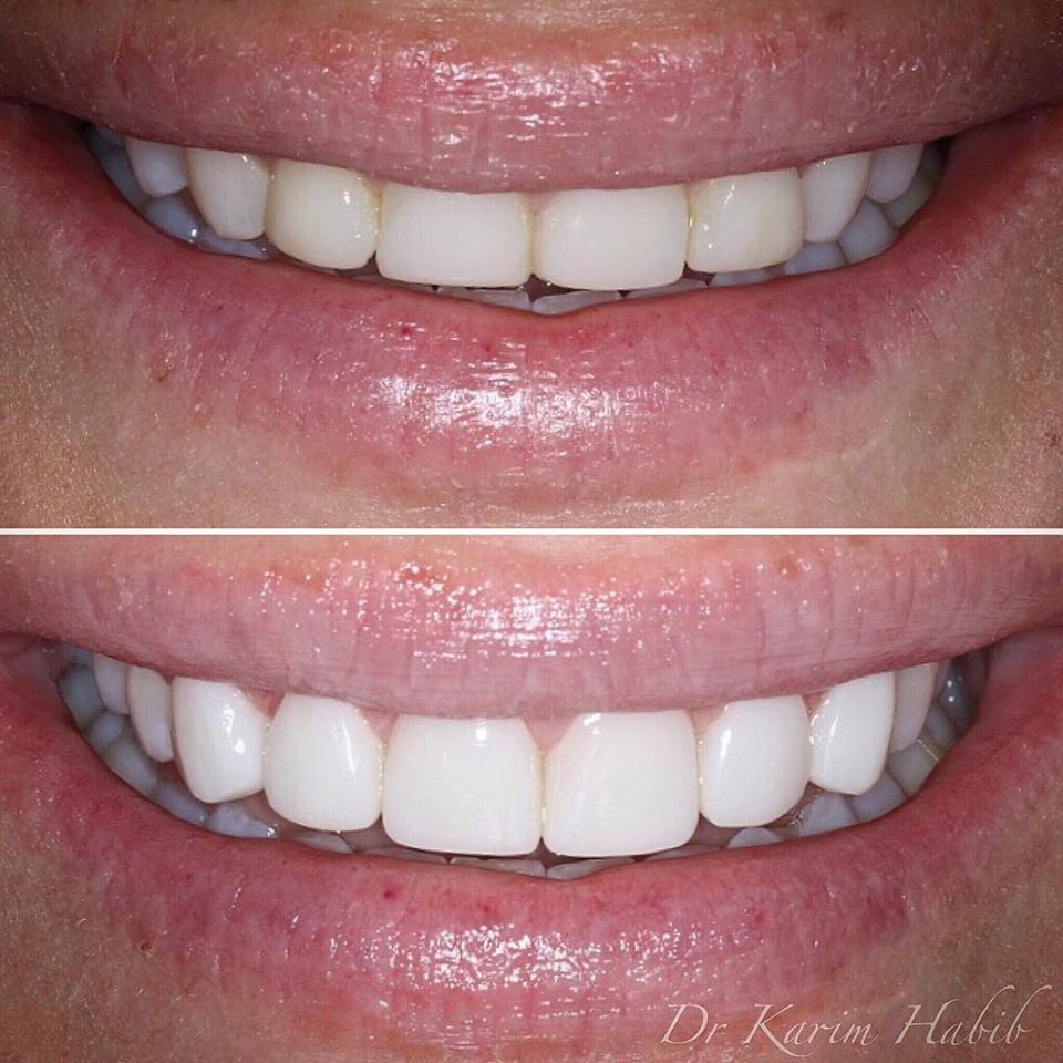 Best composite Dental veneers sydney