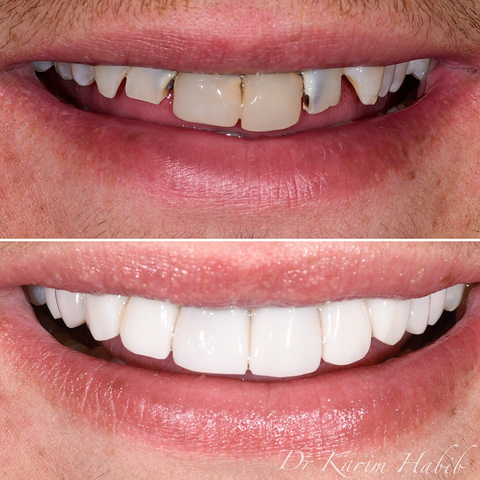 Composite Resin Dental Veneers in Sydney