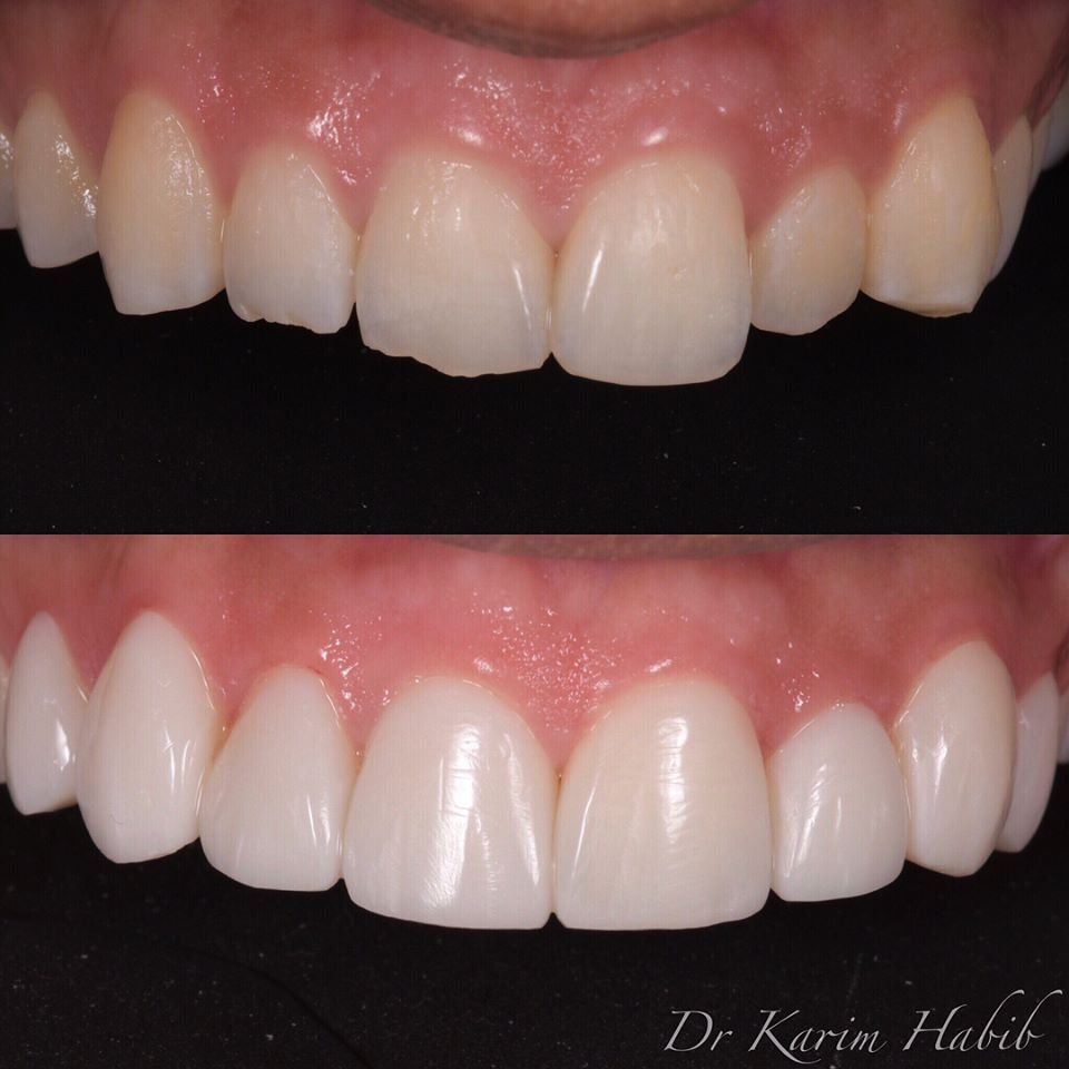 Composite veneers that look like Porcelain Veneers