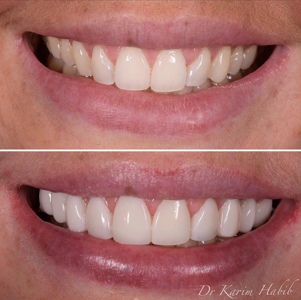 Natural Directly bonded Composite Veneers in sydney