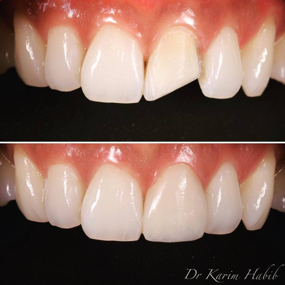 Composite Dental Bonding Sydney